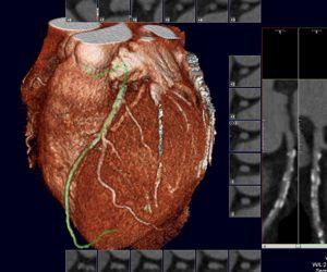 Narrowing of heart's LAD artery