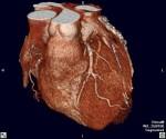 Valentine- Medical Common Sense