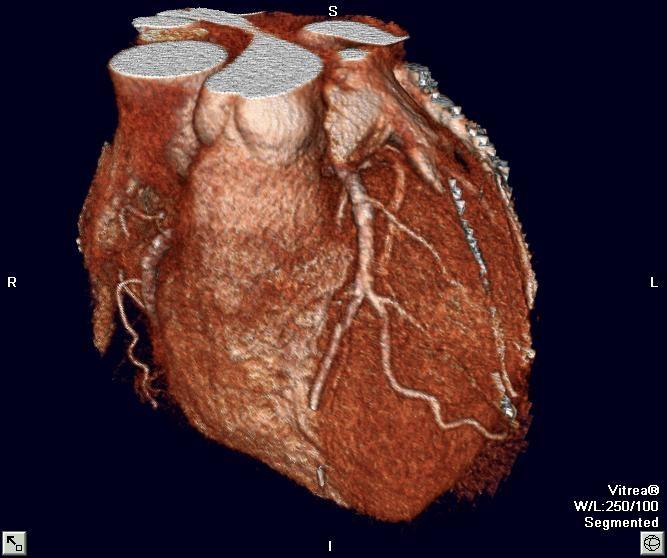 Cardiovascular Disease (CVD) in US – 2019