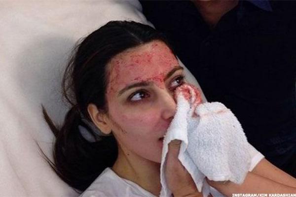 Vampire Facial Dangers