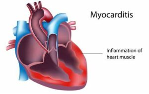 Myocarditis Side Effect, Less Likely From Vaccine Than From COVID-19 Illness